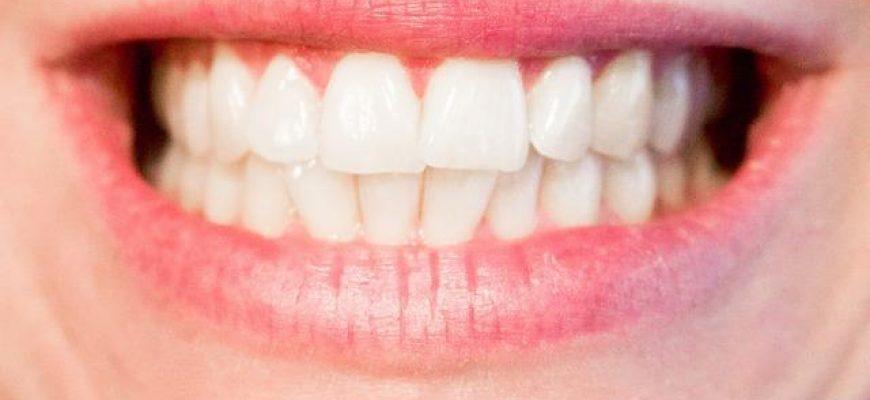 מכון מומלץ לטיפולים אסתטיים של חלל הפה
