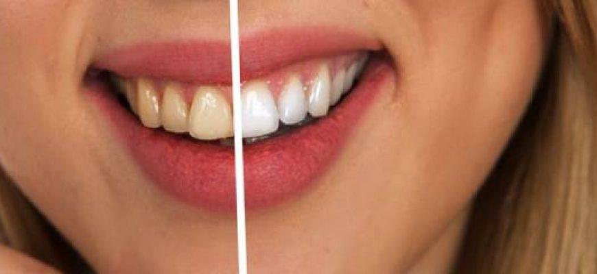 הלבנת שיניים טבעית